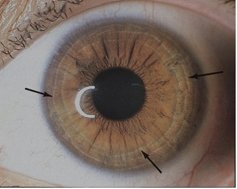How Iridology Works Biosis Healthcare Official Website